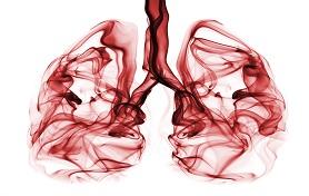 בדיקת CT ריאות בקרינה נמוכה